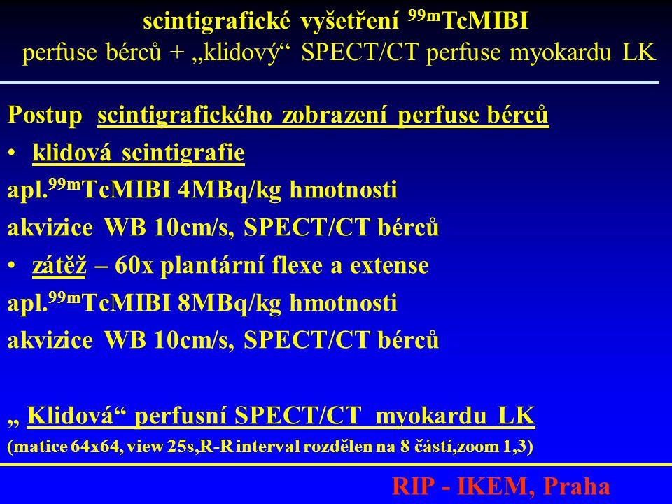 RIP - IKEM, Praha Postup scintigrafického zobrazení perfuse bérců klidová scintigrafie apl.