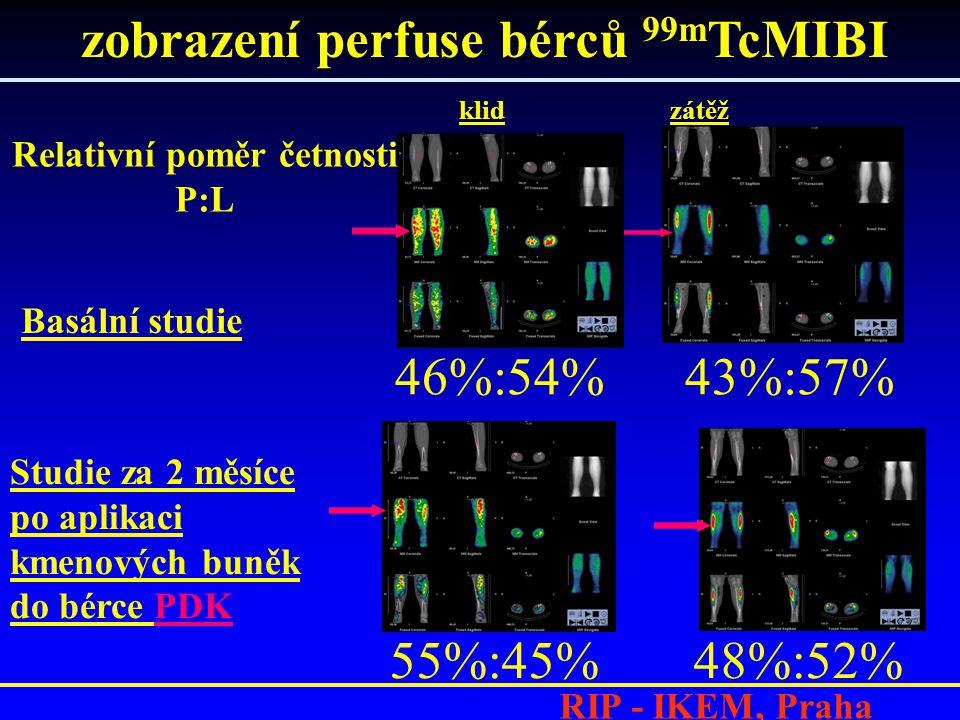 RIP - IKEM, Praha klid zátěž Basální studie Studie za 2 měsíce po aplikaci kmenových buněk do bérce PDK 46%:54% 43%:57% 55%:45% 48%:52% zobrazení perfuse bérců 99m TcMIBI Relativní poměr četnosti P:L