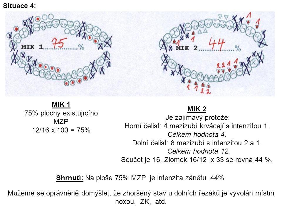 Situace 4: MIK 2 Je zajímavý protože: Horní čelist: 4 mezizubí krvácejí s intenzitou 1.