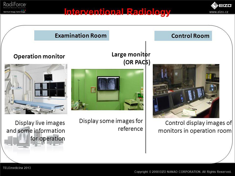 www.eizo.cz Copyright © 2008 EIZO NANAO CORPORATION. All Rights Reserved. TELEmedicína 2013 Interventional Radiology Examination Room Control Room Dis
