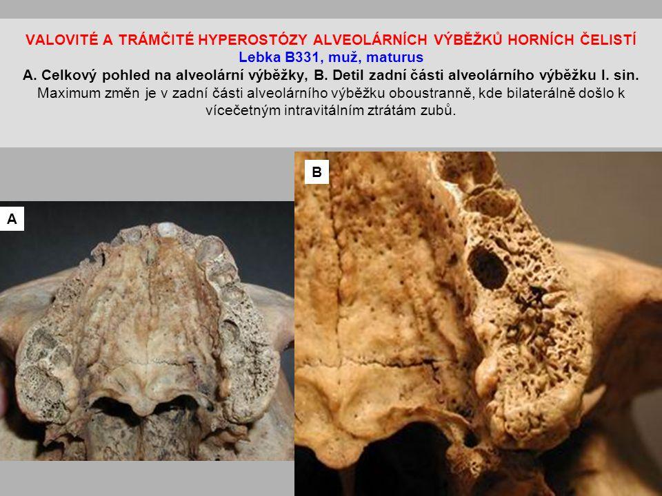 VALOVITÉ A TRÁMČITÉ HYPEROSTÓZY ALVEOLÁRNÍCH VÝBĚŽKŮ HORNÍCH ČELISTÍ Lebka B331, muž, maturus A.