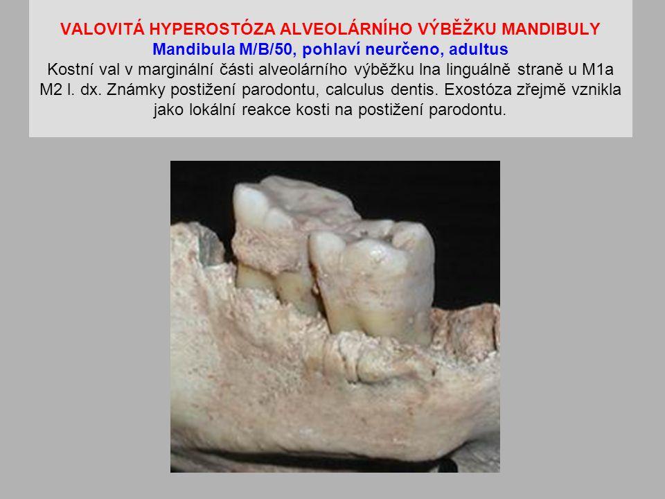 VALOVITÁ HYPEROSTÓZA ALVEOLÁRNÍHO VÝBĚŽKU MANDIBULY Mandibula M/B/50, pohlaví neurčeno, adultus Kostní val v marginální části alveolárního výběžku lna linguálně straně u M1a M2 l.