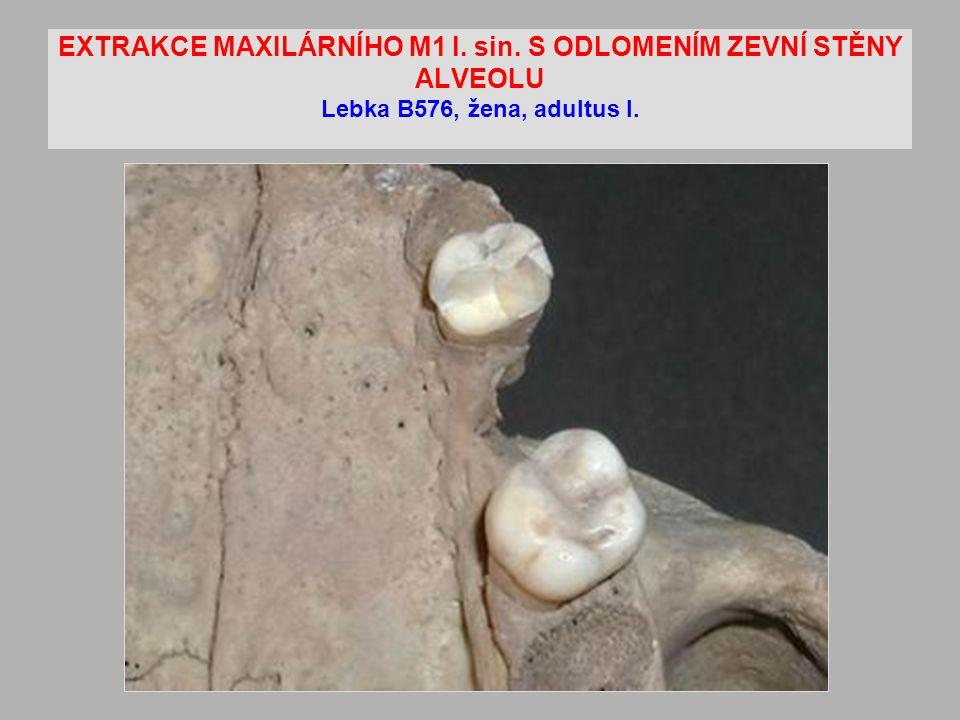 EXTRAKCE MAXILÁRNÍHO M1 l. sin. S ODLOMENÍM ZEVNÍ STĚNY ALVEOLU Lebka B576, žena, adultus I.