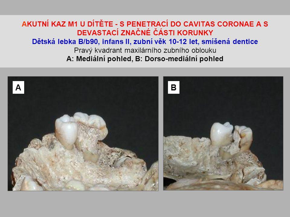 AKUTNÍ KAZ M1 U DÍTĚTE - S PENETRACÍ DO CAVITAS CORONAE A S DEVASTACÍ ZNAČNÉ ČÁSTI KORUNKY Dětská lebka B/b90, infans II, zubní věk 10-12 let, smíšená dentice Pravý kvadrant maxilárního zubního oblouku A: Mediální pohled, B: Dorso-mediální pohled AB