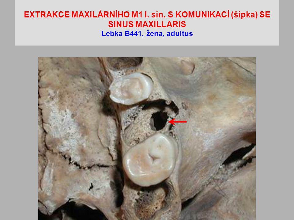 EXTRAKCE MAXILÁRNÍHO M1 l. sin. S KOMUNIKACÍ (šipka) SE SINUS MAXILLARIS Lebka B441, žena, adultus