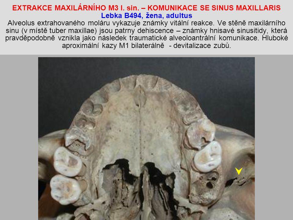 EXTRAKCE MAXILÁRNÍHO M3 l.sin.