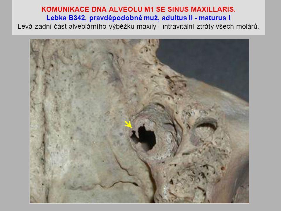 KOMUNIKACE DNA ALVEOLU M1 SE SINUS MAXILLARIS.