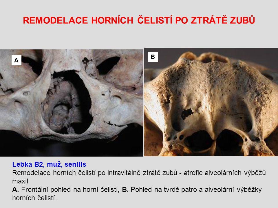 REMODELACE HORNÍCH ČELISTÍ PO ZTRÁTĚ ZUBŮ Lebka B2, muž, senilis Remodelace horních čelistí po intravitálně ztrátě zubů - atrofie alveolárních výběžů maxil A.