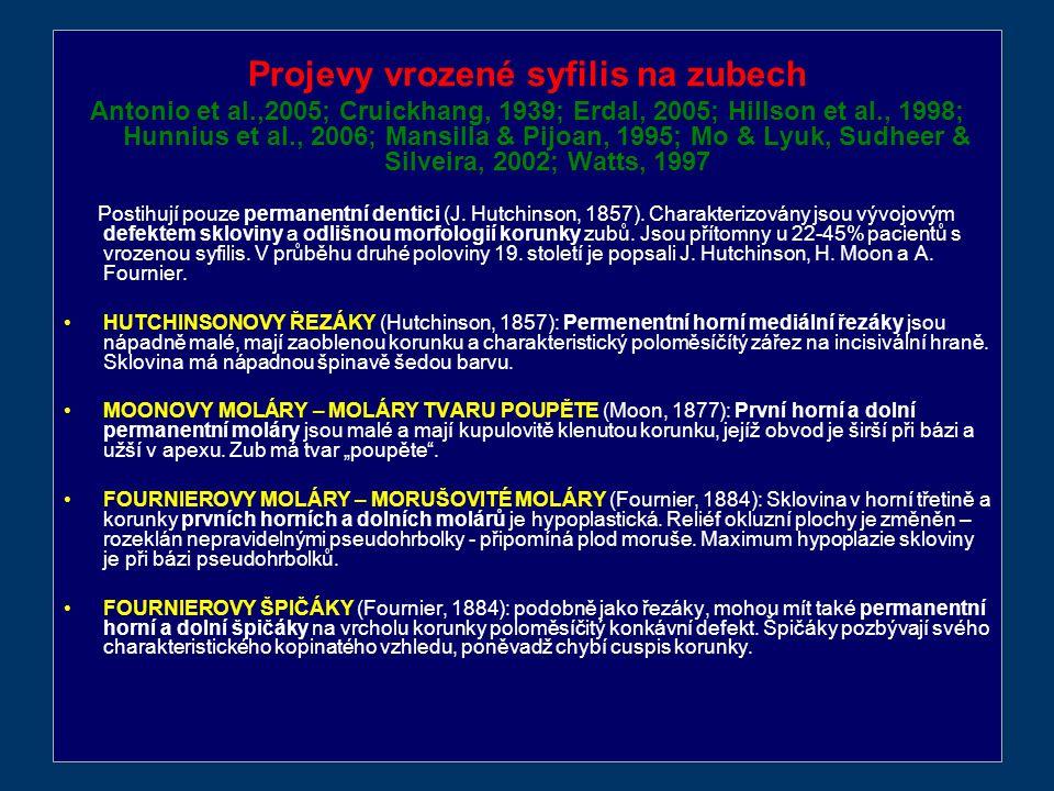 Projevy vrozené syfilis na zubech Antonio et al.,2005; Cruickhang, 1939; Erdal, 2005; Hillson et al., 1998; Hunnius et al., 2006; Mansilla & Pijoan, 1995; Mo & Lyuk, Sudheer & Silveira, 2002; Watts, 1997 Postihují pouze permanentní dentici (J.