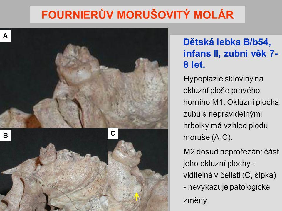 FOURNIERŮV MORUŠOVITÝ MOLÁR Dětská lebka B/b54, infans II, zubní věk 7- 8 let.