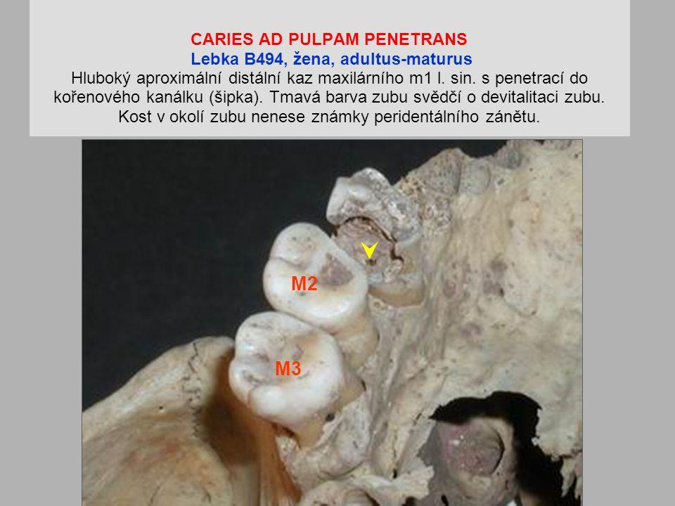 CARIES AD PULPAM PENETRANS Lebka B494, žena, adultus-maturus Hluboký aproximální distální kaz maxilárního m1 l.