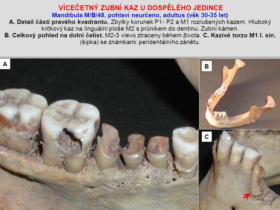 VÍCEČETNÝ ZUBNÍ KAZ U DOSPĚLÉHO JEDINCE Mandibula M/B/48, pohlaví neurčeno, adultus (věk 30-35 let) A.