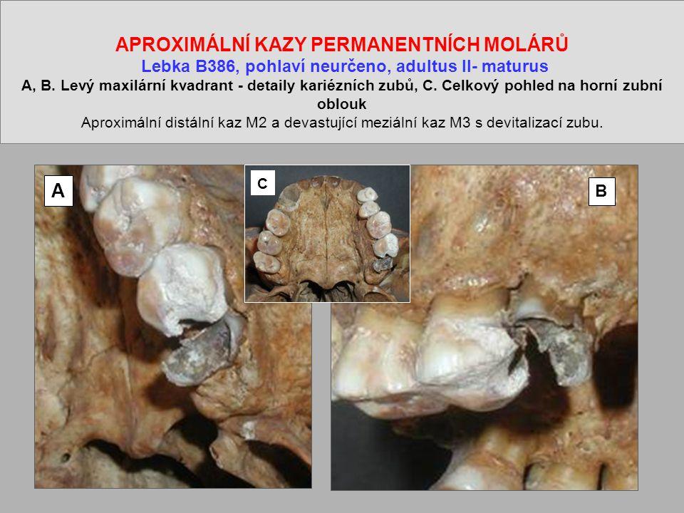 APROXIMÁLNÍ KAZY PERMANENTNÍCH MOLÁRŮ Lebka B386, pohlaví neurčeno, adultus II- maturus A, B.