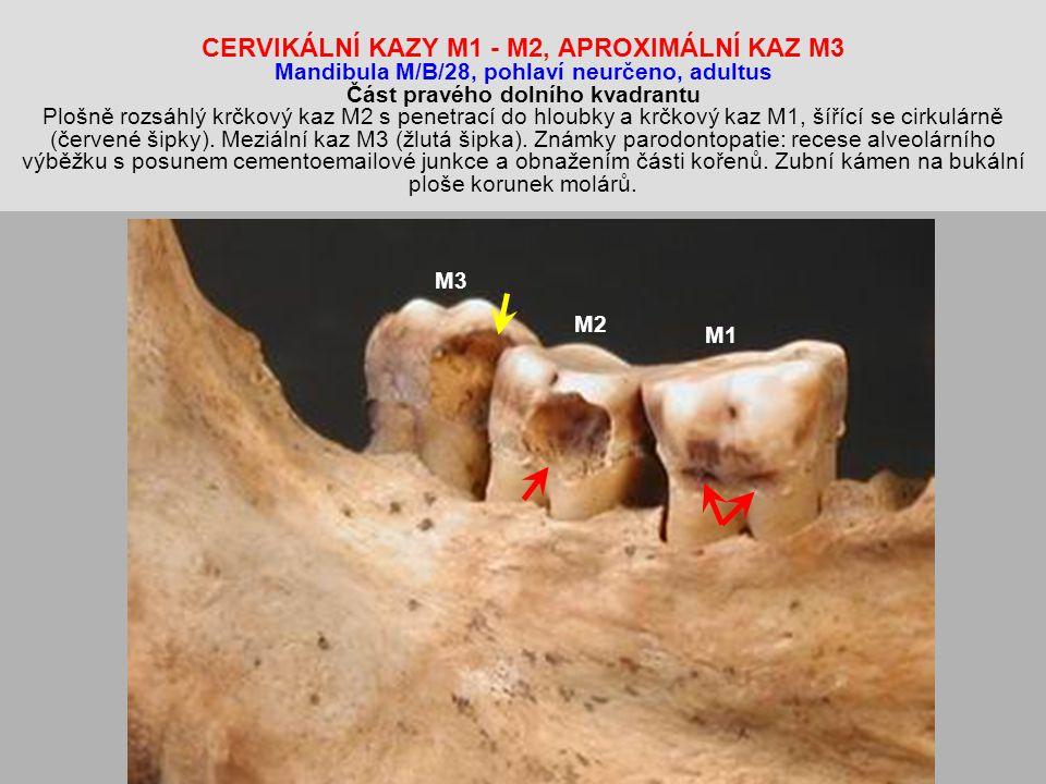 CERVIKÁLNÍ KAZY M1 - M2, APROXIMÁLNÍ KAZ M3 Mandibula M/B/28, pohlaví neurčeno, adultus Část pravého dolního kvadrantu Plošně rozsáhlý krčkový kaz M2 s penetrací do hloubky a krčkový kaz M1, šířící se cirkulárně (červené šipky).