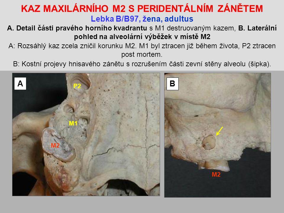 KAZ MAXILÁRNÍHO M2 S PERIDENTÁLNÍM ZÁNĚTEM Lebka B/B97, žena, adultus A.