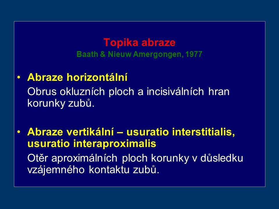 Topika abraze Baath & Nieuw Amergongen, 1977 Abraze horizontální Obrus okluzních ploch a incisiválních hran korunky zubů.