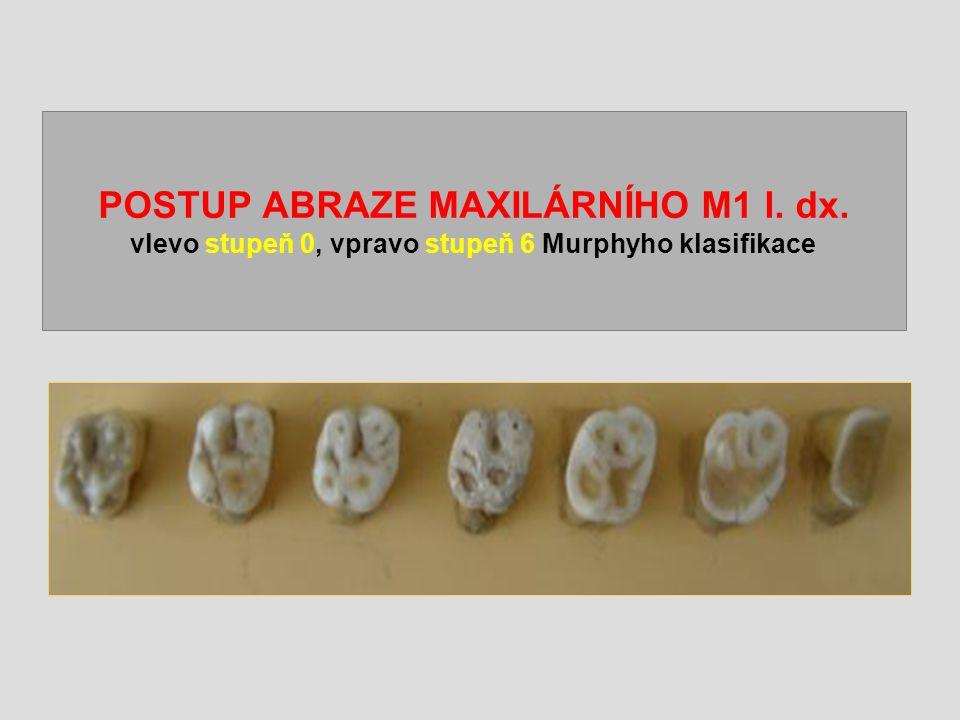 POSTUP ABRAZE MAXILÁRNÍHO M1 l. dx. vlevo stupeň 0, vpravo stupeň 6 Murphyho klasifikace