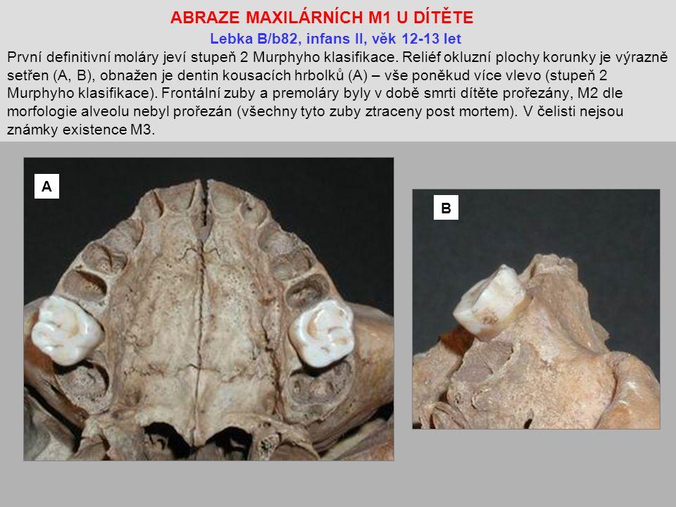 ABRAZE MAXILÁRNÍCH M1 U DÍTĚTE Lebka B/b82, infans II, věk 12-13 let První definitivní moláry jeví stupeň 2 Murphyho klasifikace.