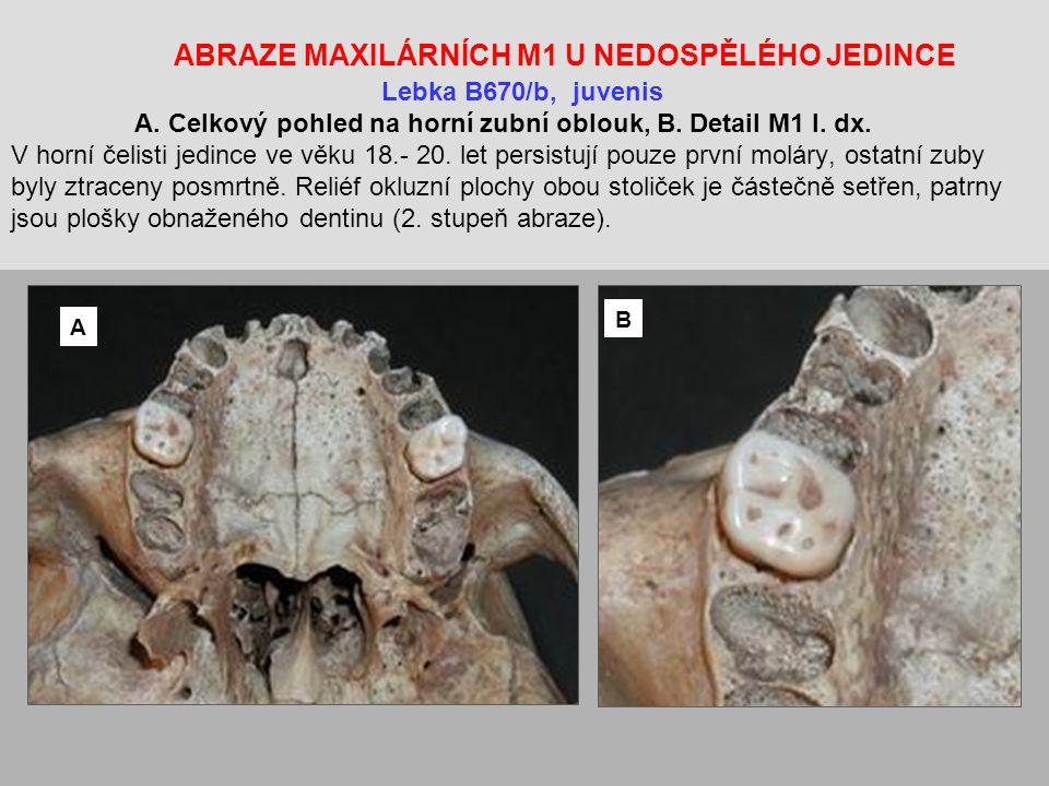 ABRAZE MAXILÁRNÍCH M1 U NEDOSPĚLÉHO JEDINCE Lebka B670/b, juvenis A.