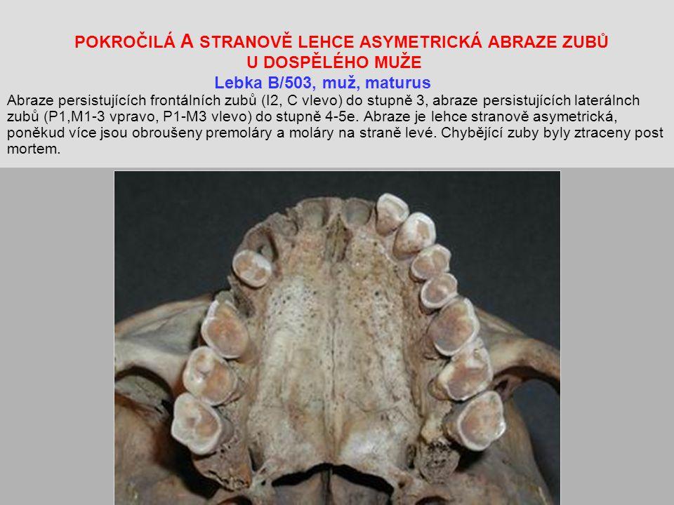 POKROČILÁ A STRANOVĚ LEHCE ASYMETRICKÁ ABRAZE ZUBŮ U DOSPĚLÉHO MUŽE Lebka B/503, muž, maturus Abraze persistujících frontálních zubů (I2, C vlevo) do stupně 3, abraze persistujících laterálnch zubů (P1,M1-3 vpravo, P1-M3 vlevo) do stupně 4-5e.