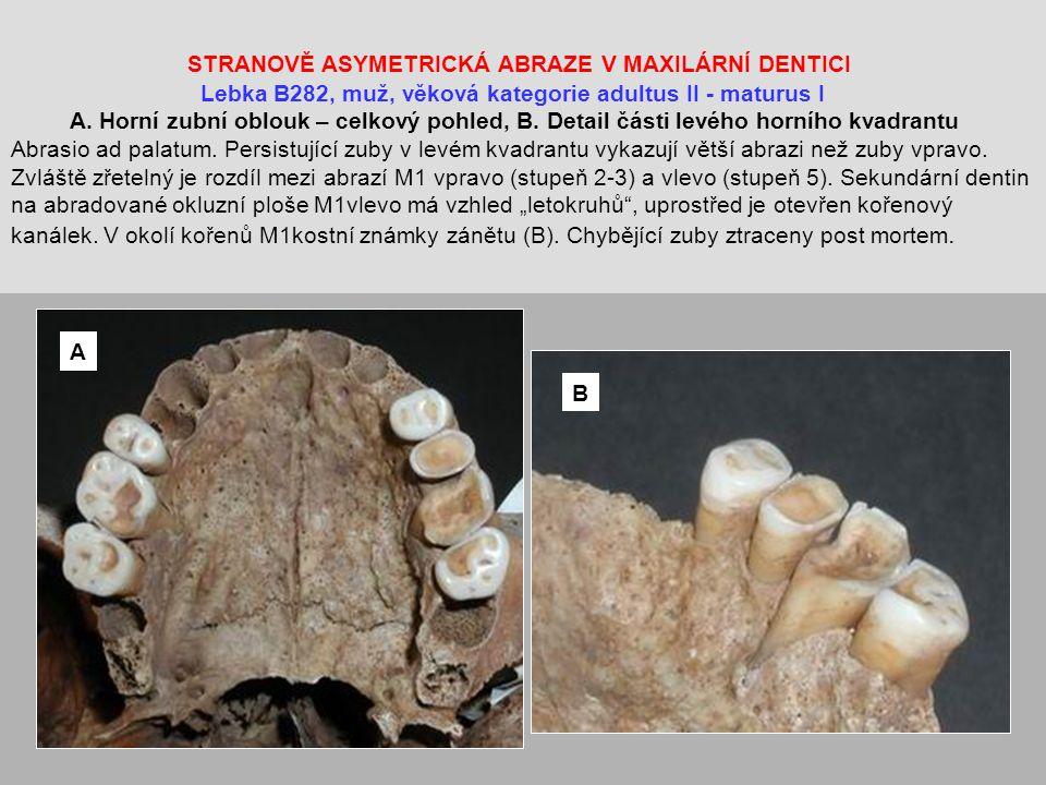 STRANOVĚ ASYMETRICKÁ ABRAZE V MAXILÁRNÍ DENTICI Lebka B282, muž, věková kategorie adultus II - maturus I A.