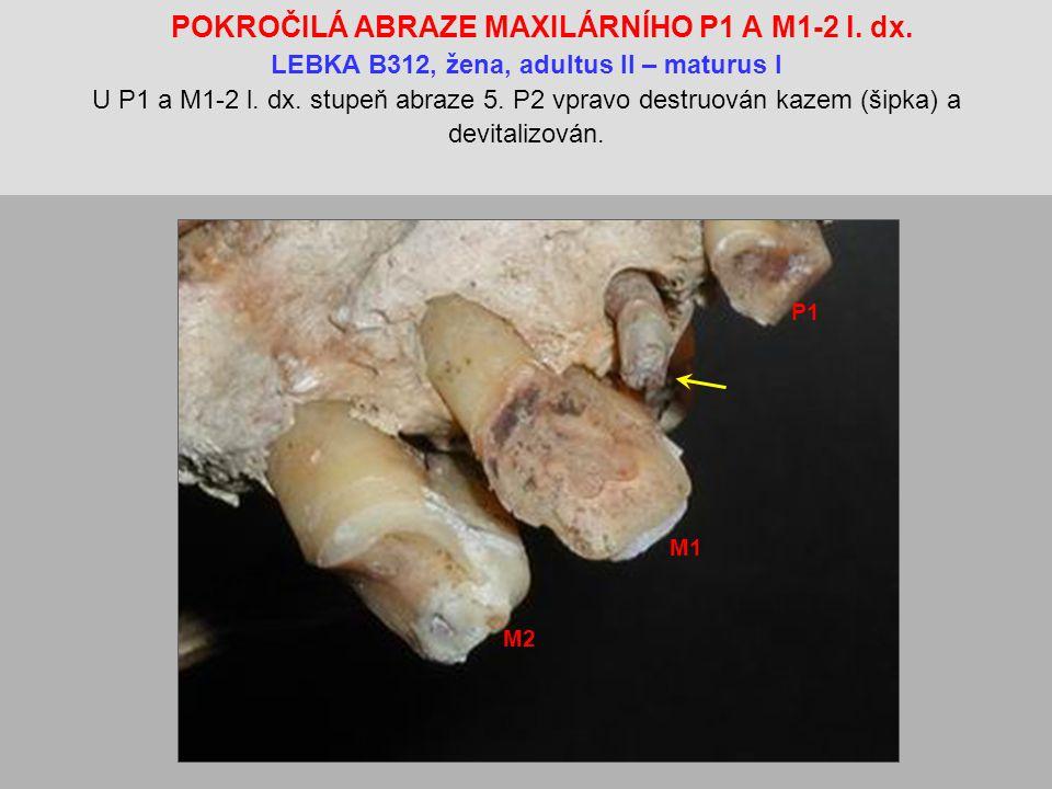 POKROČILÁ ABRAZE MAXILÁRNÍHO P1 A M1-2 l.dx.