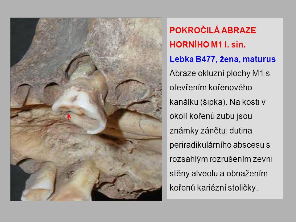 POKROČILÁ ABRAZE HORNÍHO M1 l.sin.