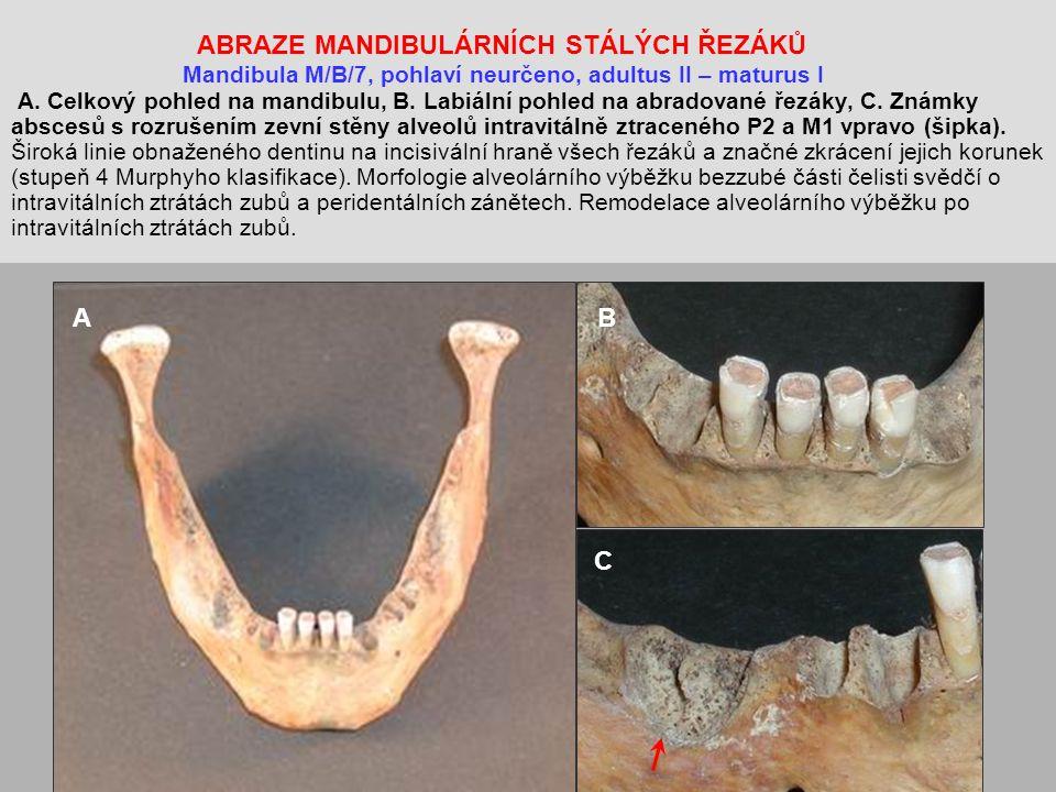 ABRAZE MANDIBULÁRNÍCH STÁLÝCH ŘEZÁKŮ Mandibula M/B/7, pohlaví neurčeno, adultus II – maturus I A.