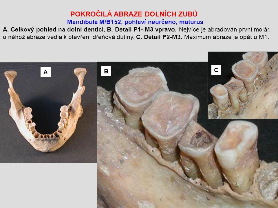 POKROČILÁ ABRAZE DOLNÍCH ZUBŮ Mandibula M/B152, pohlaví neurčeno, maturus A.