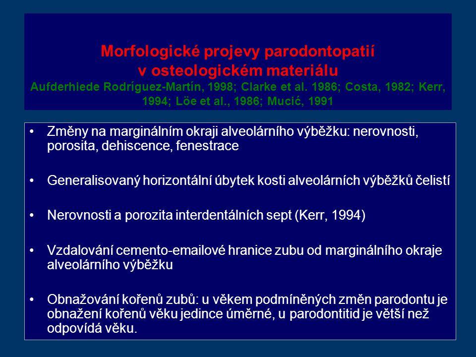Morfologické projevy parodontopatií v osteologickém materiálu Aufderhiede Rodríguez-Martín, 1998; Clarke et al.