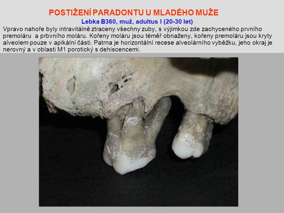 POSTIŽENÍ PARADONTU U MLADÉHO MUŽE Lebka B360, muž, adultus I (20-30 let) Vpravo nahoře byly intravitálně ztraceny všechny zuby, s výjimkou zde zachyceného prvního premoláru a prbvního moláru.