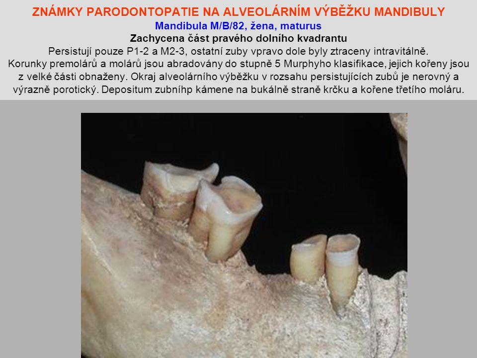 ZNÁMKY PARODONTOPATIE NA ALVEOLÁRNÍM VÝBĚŽKU MANDIBULY Mandibula M/B/82, žena, maturus Zachycena část pravého dolního kvadrantu Persistují pouze P1-2 a M2-3, ostatní zuby vpravo dole byly ztraceny intravitálně.