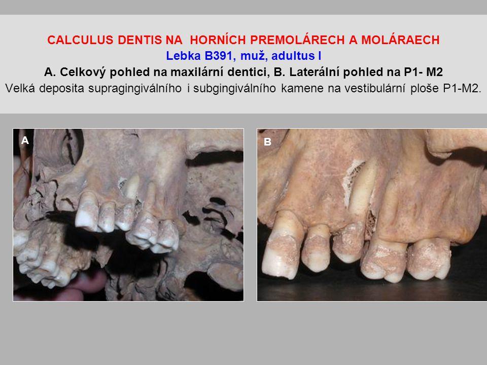 CALCULUS DENTIS NA HORNÍCH PREMOLÁRECH A MOLÁRAECH Lebka B391, muž, adultus I A.
