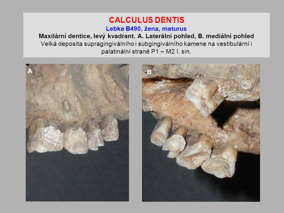 CALCULUS DENTIS Lebka B490, žena, maturus Maxilární dentice, levý kvadrant.