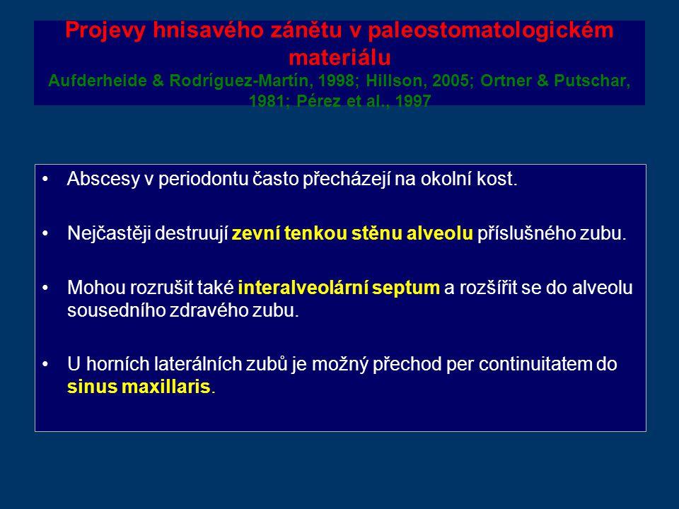 Projevy hnisavého zánětu v paleostomatologickém materiálu Aufderheide & Rodríguez-Martín, 1998; Hillson, 2005; Ortner & Putschar, 1981; Pérez et al., 1997 Abscesy v periodontu často přecházejí na okolní kost.