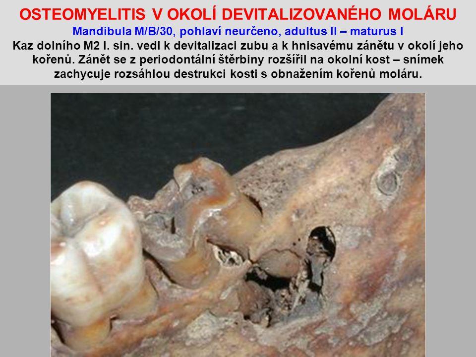OSTEOMYELITIS V OKOLÍ DEVITALIZOVANÉHO MOLÁRU Mandibula M/B/30, pohlaví neurčeno, adultus II – maturus I Kaz dolního M2 l.