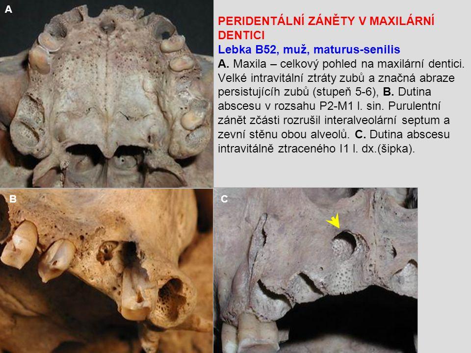 PERIDENTÁLNÍ ZÁNĚTY V MAXILÁRNÍ DENTICI Lebka B52, muž, maturus-senilis A.