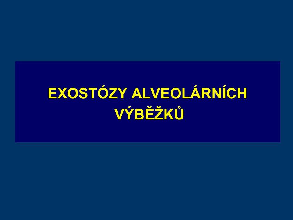 EXOSTÓZY ALVEOLÁRNÍCH VÝBĚŽKŮ