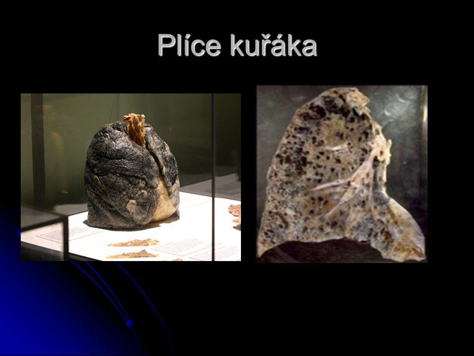 Plíce po 20 letech kouřeni nádor nádor