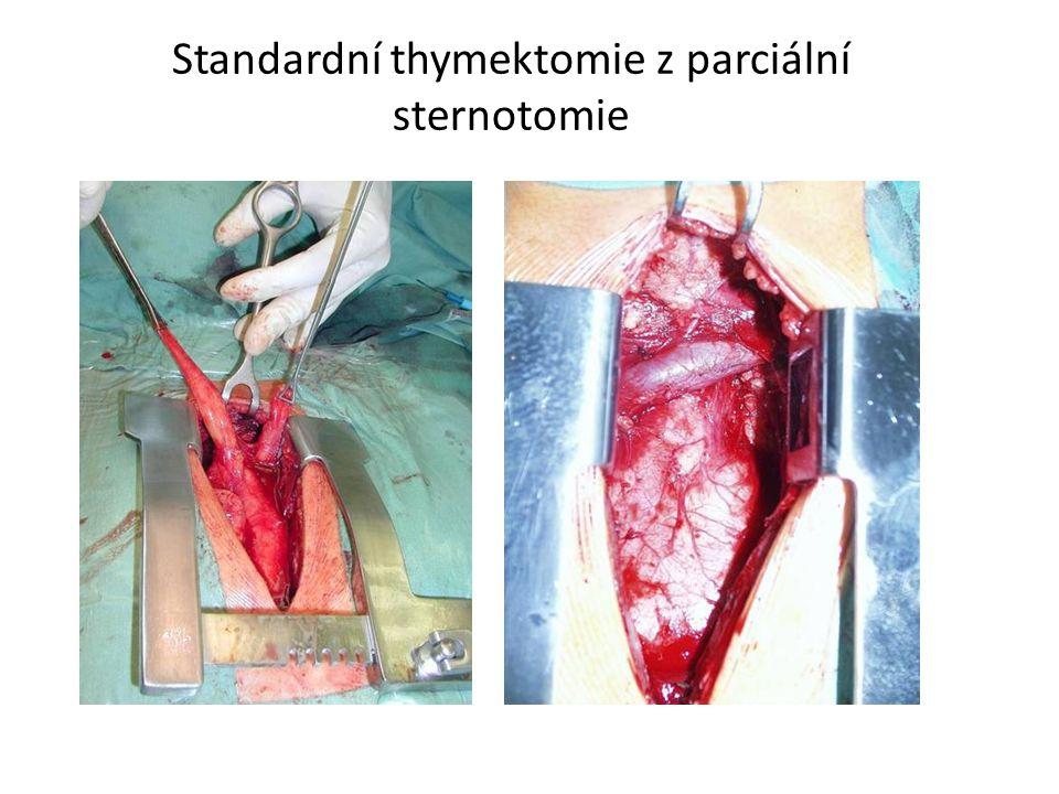 Standardní thymektomie z parciální sternotomie