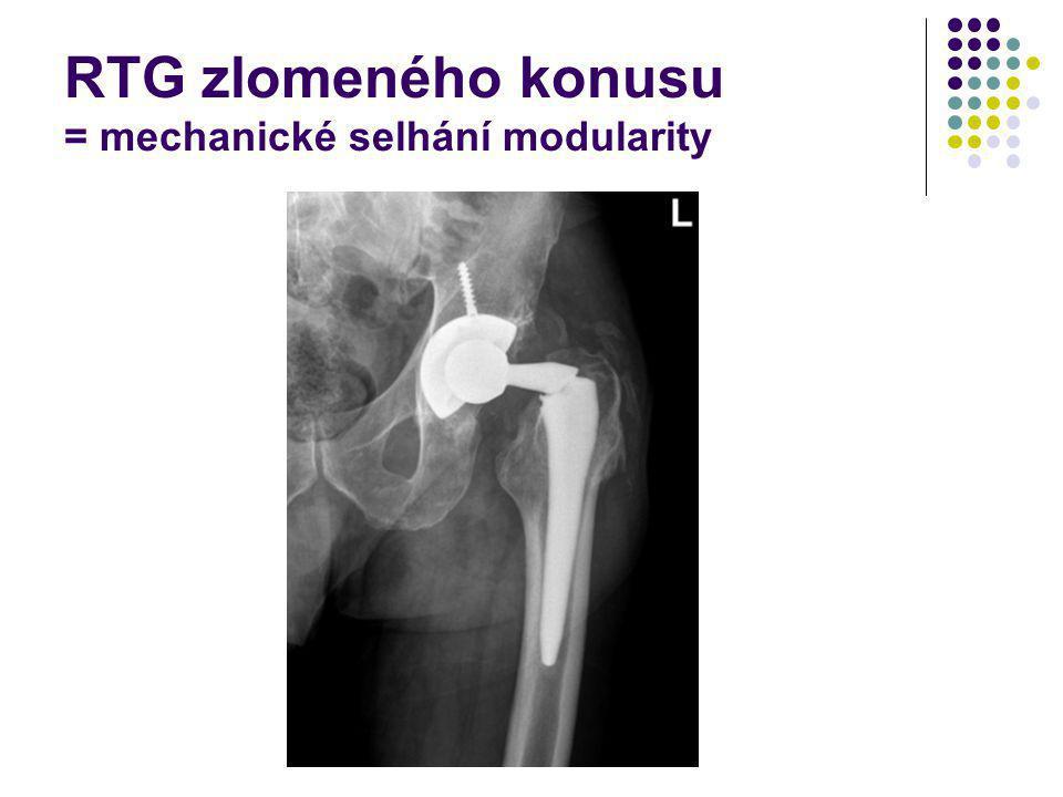 RTG zlomeného konusu = mechanické selhání modularity