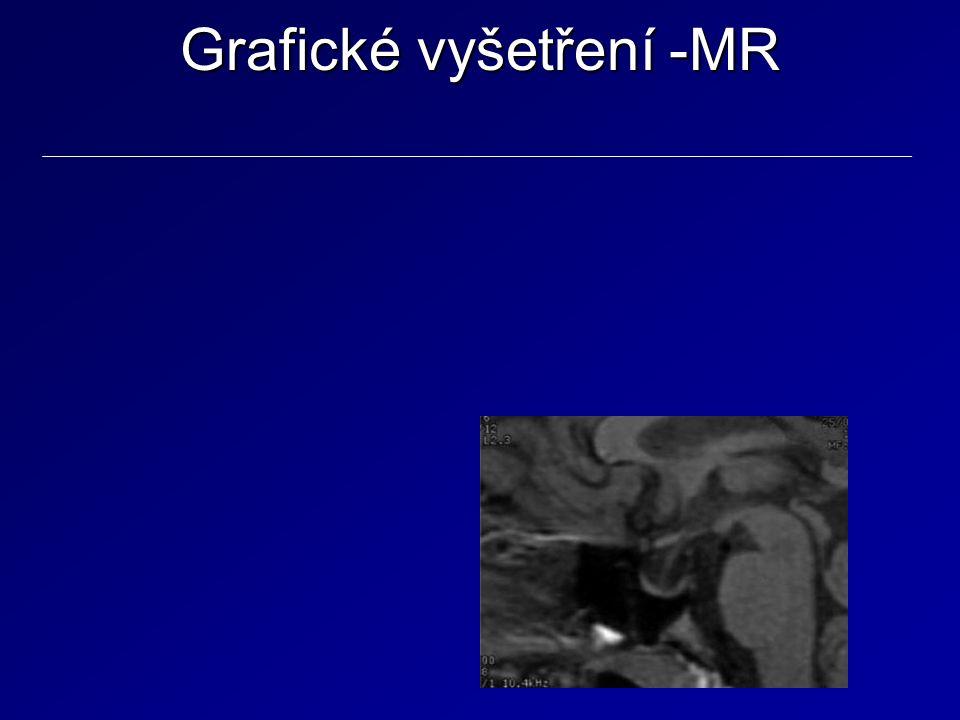 Grafické vyšetření -MR
