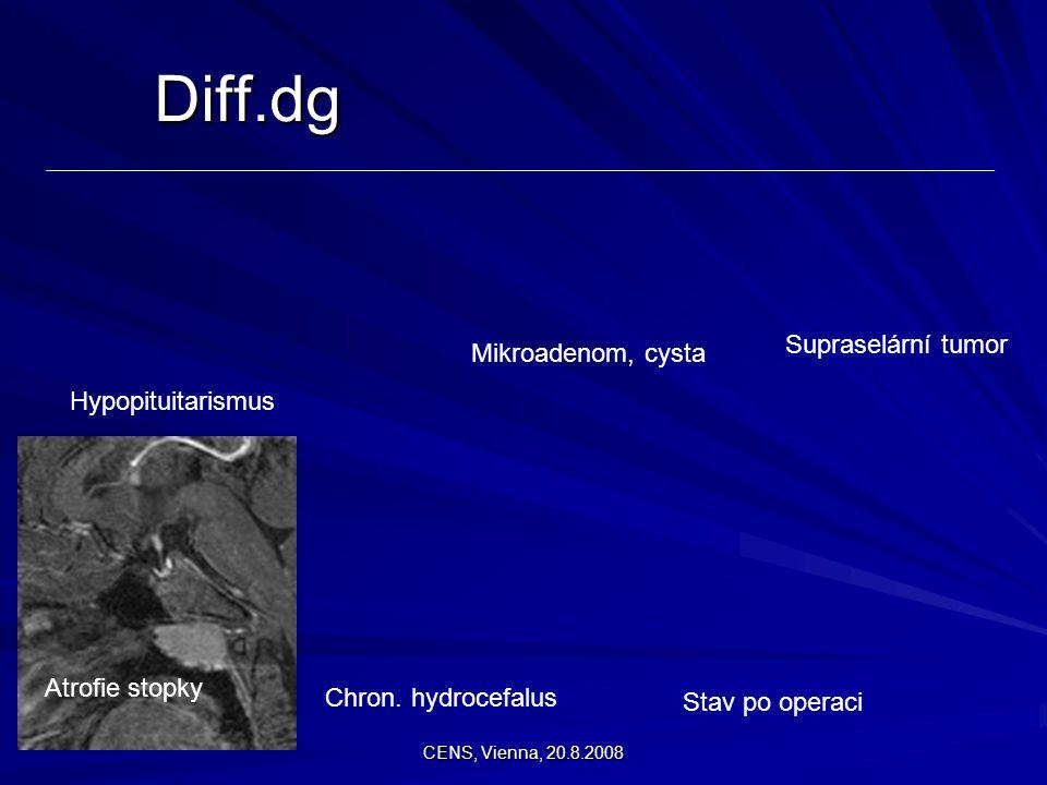 CENS, Vienna, 20.8.2008 Hypopituitarismus Mikroadenom, cysta Supraselární tumor Chron. hydrocefalus Stav po operaci Atrofie stopky Diff.dg
