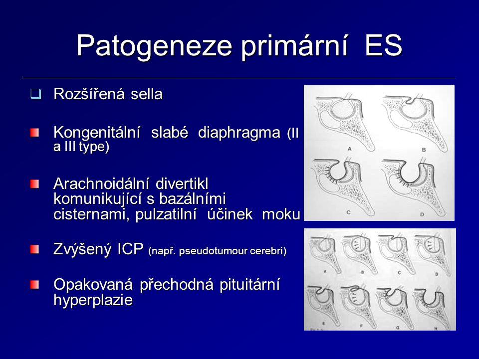 Patogeneze primární ES  Rozšířená sella Kongenitální slabé diaphragma (II a III type) Arachnoidální divertikl komunikující s bazálními cisternami, pu