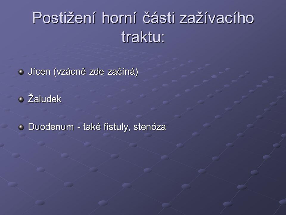 Postižení horní části zažívacího traktu: Jícen (vzácně zde začíná) Žaludek Duodenum - také fistuly, stenóza