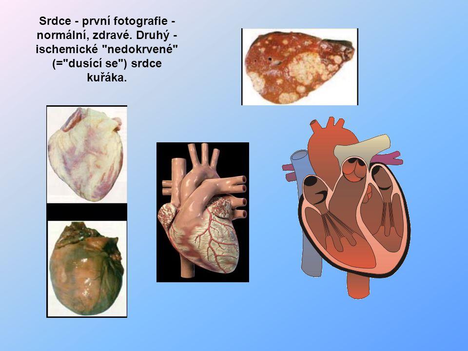 Srdce - první fotografie - normální, zdravé. Druhý - ischemické