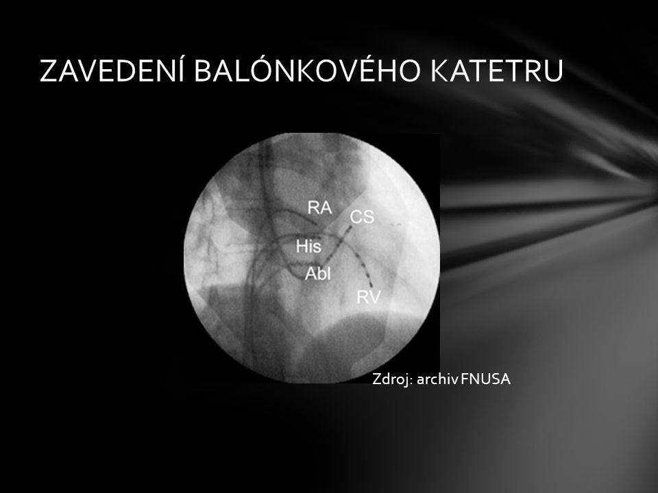ZAVEDENÍ BALÓNKOVÉHO KATETRU Zdroj: archiv FNUSA