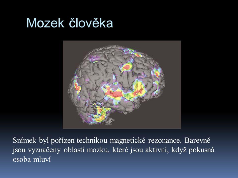 Snímek byl pořízen technikou magnetické rezonance. Barevně jsou vyznačeny oblasti mozku, které jsou aktivní, když pokusná osoba mluví