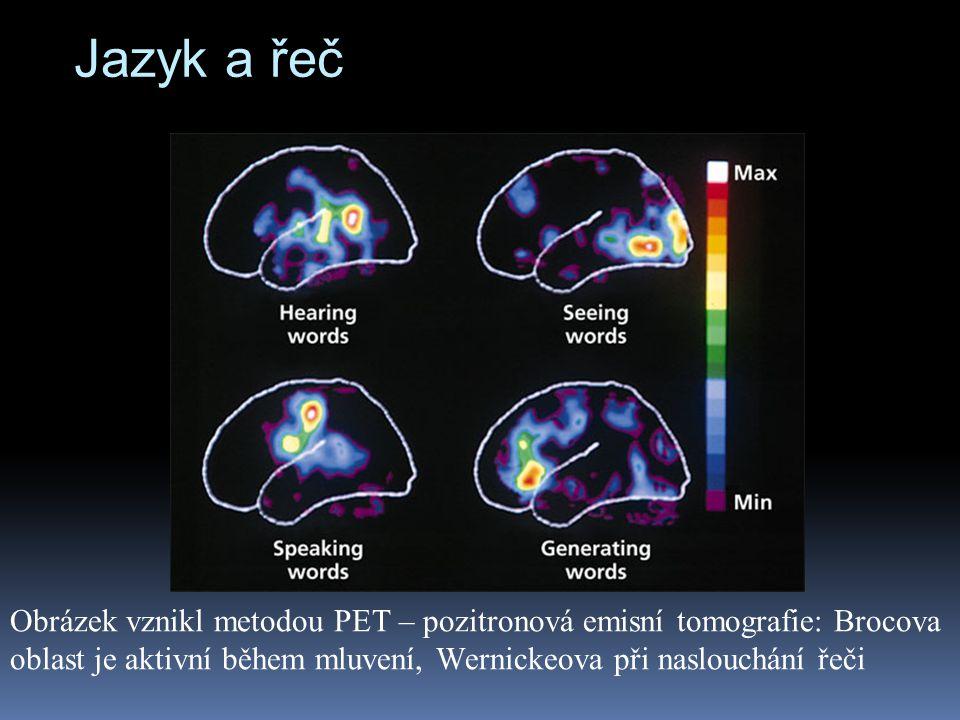 Jazyk a řeč Obrázek vznikl metodou PET – pozitronová emisní tomografie: Brocova oblast je aktivní během mluvení, Wernickeova při naslouchání řeči