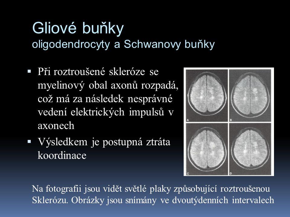 Gliové buňky oligodendrocyty a Schwanovy buňky  Při roztroušené skleróze se myelinový obal axonů rozpadá, což má za následek nesprávné vedení elektri
